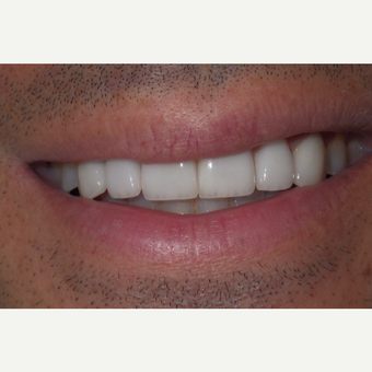 We brightened and enhanced his smile with six veneers. after 3448313