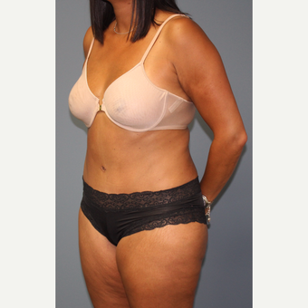 35-44 year old woman treated with Tummy Tuck after 3502249