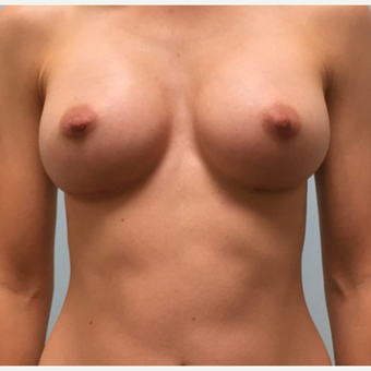 Breast augmentation with Natrelle Gel 410 Anatomically Shaped Implants on 5'2, 103lb patient after 3076206