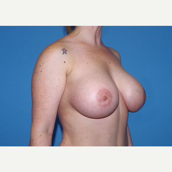 25-34 year old woman treated with Breast Implants after 3440116