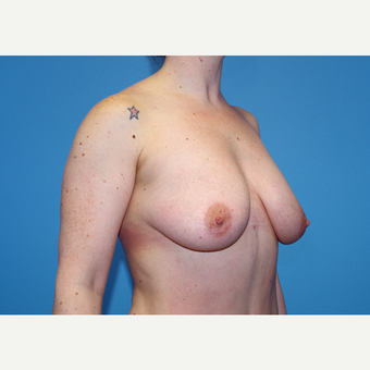 25-34 year old woman treated with Breast Implants before 3440116