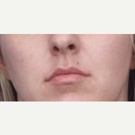25-34 year old woman treated with Restylane Silk before 3764110