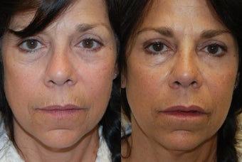 Lip Augmentation and Wrinkle Reduction with Silikon-1000 before 1364660