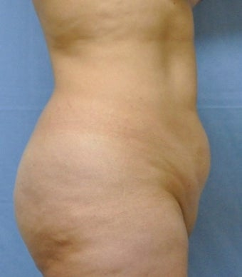 35-44 year old woman treated with Tummy Tuck before 2553447