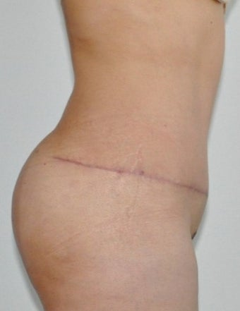 35-44 year old woman treated with Tummy Tuck after 2553447