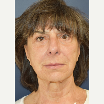 65-74 year old woman treated with MACS Facelift before 3213997