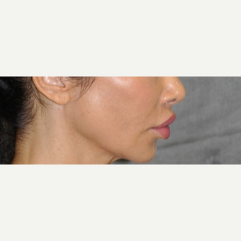 35-44 year old woman treated with Lip Lift after 3175738