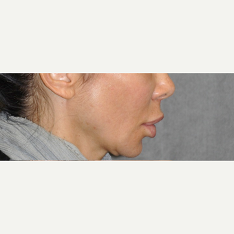 35-44 year old woman treated with Lip Lift before 3175738