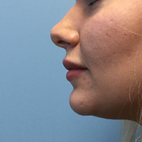 25-34 year old woman treated with Lip Augmentation after 3679415
