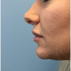 25-34 year old woman treated with Lip Augmentation before 3679415