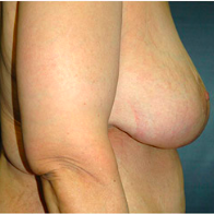58 year old woman treated with Breast Lift after 3666005