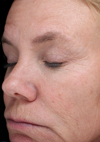 54 year old woman treated with Halo Laser and BBL 3656518