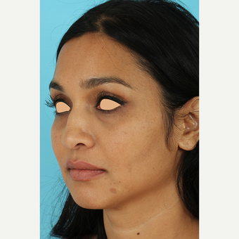 25-34 year old woman treated with Revision Rhinoplasty before 3691216