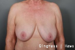Breast Implant Removal after 1383963