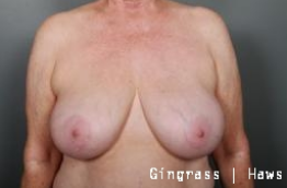Breast Implant Removal before 1383963