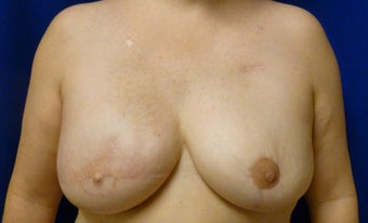 Delayed Breast Reconstruction with Latissimus Flap and Expander after 1097726