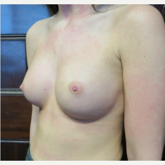 18-24 year old woman treated with Breast Augmentation after 3070077