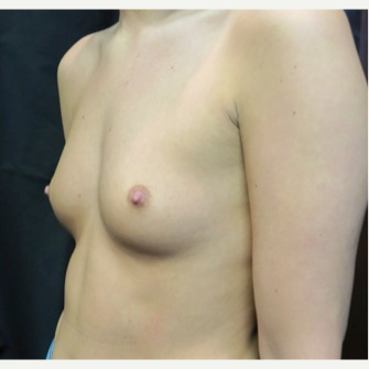 18-24 year old woman treated with Breast Augmentation before 3070077