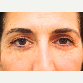 52 year old woman treated with Eye Bags Treatment after 3783341