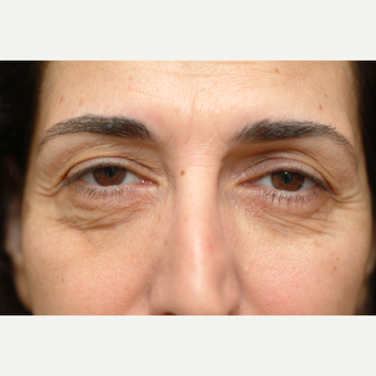 52 year old woman treated with Eye Bags Treatment before 3783341