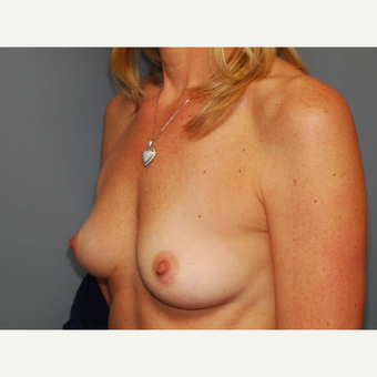 49 y/o Inframammary Sub Muscular Breast Augmentation before 3066241