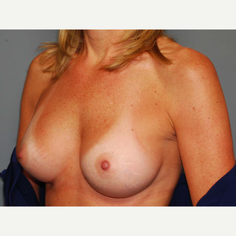 49 y/o Inframammary Sub Muscular Breast Augmentation after 3066241