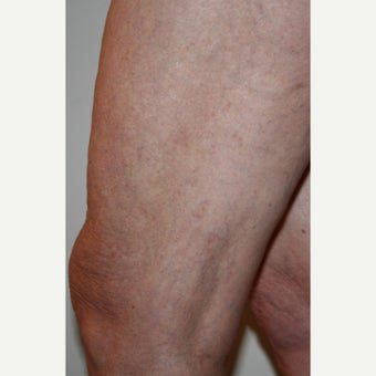 55-64 year old woman treated with Sclerotherapy after 2202469