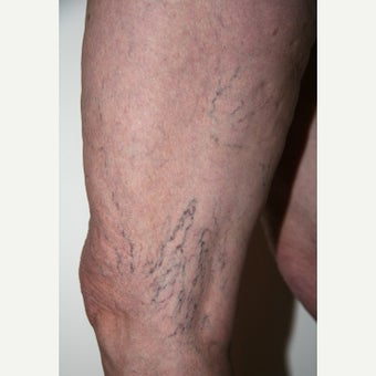 55-64 year old woman treated with Sclerotherapy before 2202469