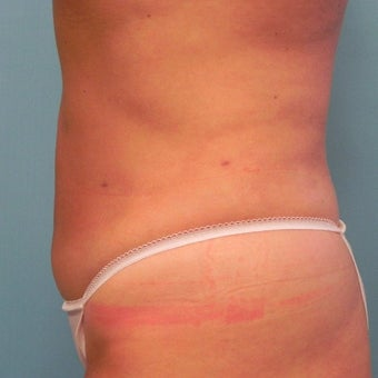 35-44 year old woman treated with Slim Lipo after 1857686
