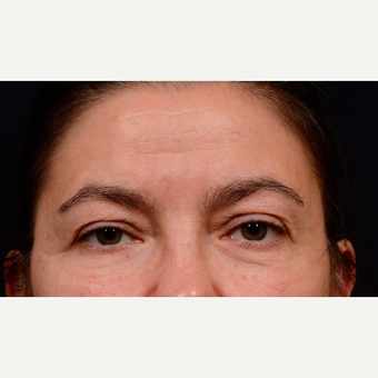 55-64 year old woman treated with Eyelid Surgery before 3776191
