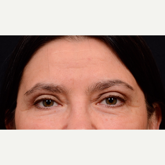 55-64 year old woman treated with Eyelid Surgery after 3776191