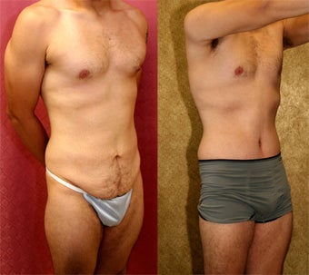 tummy tuck before 232462
