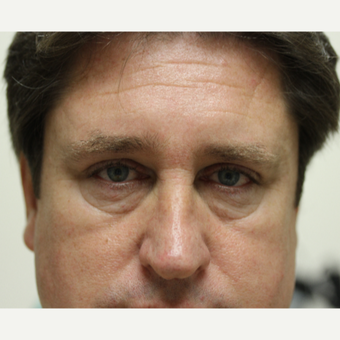 45-54 year old man treated with Eye Bags Treatment before 3837228