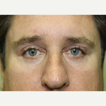 45-54 year old man treated with Eye Bags Treatment after 3837228