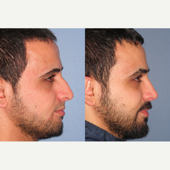 35-44 year old man treated with Rhinoplasty after 3521794