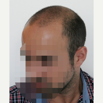 35-44 year old man treated with FUE Hair Transplant before 3068937