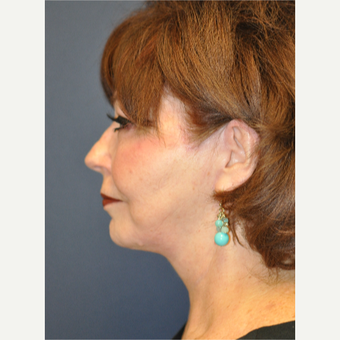 55-64 year old woman treated with Facelift after 3055696