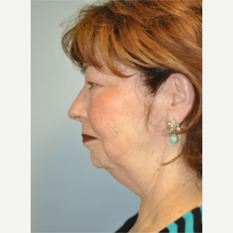 55-64 year old woman treated with Facelift before 3055696