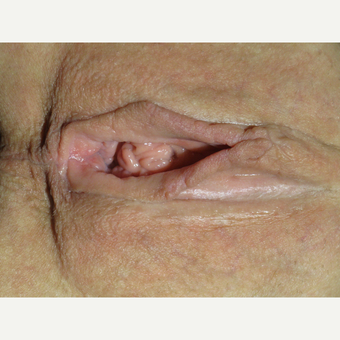 42 y.o. woman, lax and aesthetically unappealing vaginal opening after 2720867