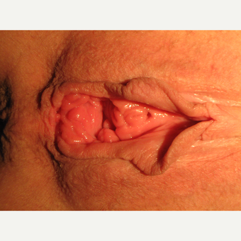 42 y.o. woman, lax and aesthetically unappealing vaginal opening before 2720867