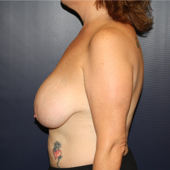 45-54 year old woman treated with Breast Reduction before 3028198