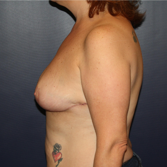 45-54 year old woman treated with Breast Reduction after 3028198