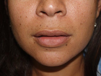 Upper Lip Lift - Before and 1 Year After 856558