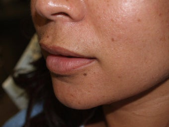 Upper Lip Lift - Before and 1 Year After before 856558