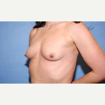 25-34 year old woman treated with Breast Augmentation before 3763105
