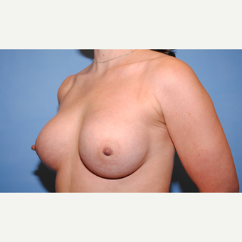 25-34 year old woman treated with Breast Augmentation after 3763105