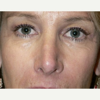 45-54 year old woman treated with Non Surgical Nose Job