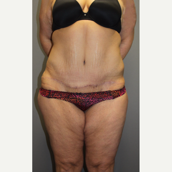 35-44 year old woman treated with Tummy Tuck after 3140822