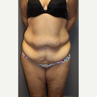 35-44 year old woman treated with Tummy Tuck before 3140822