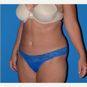 Tummy Tuck after 3807181